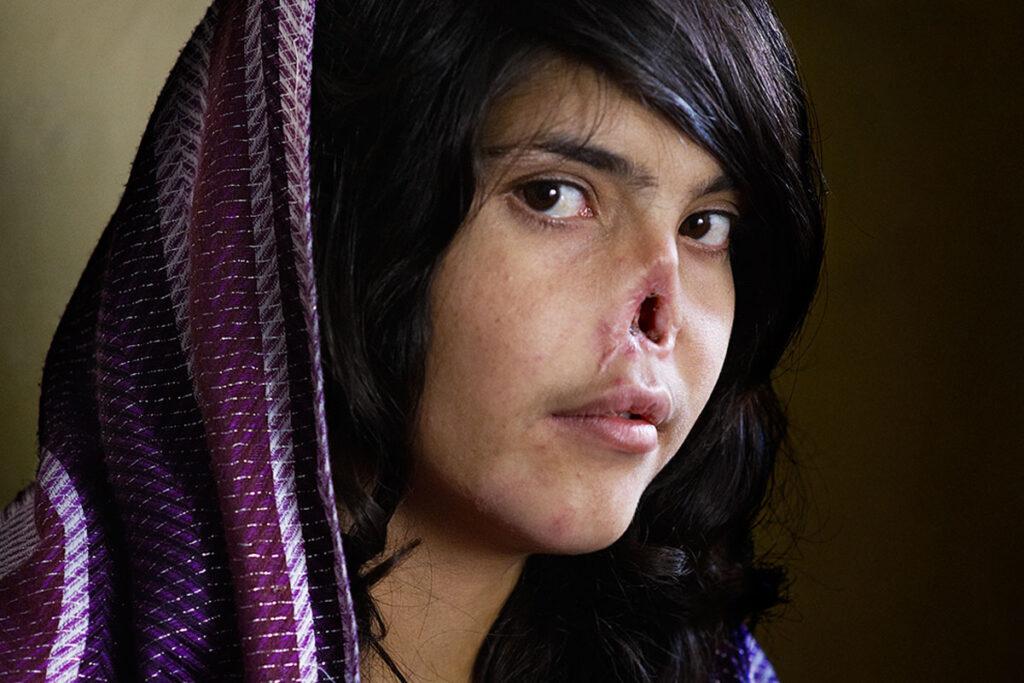 Fotografia de uma rapariga com o nariz mutilado